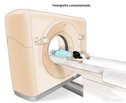 Tomografía Curso